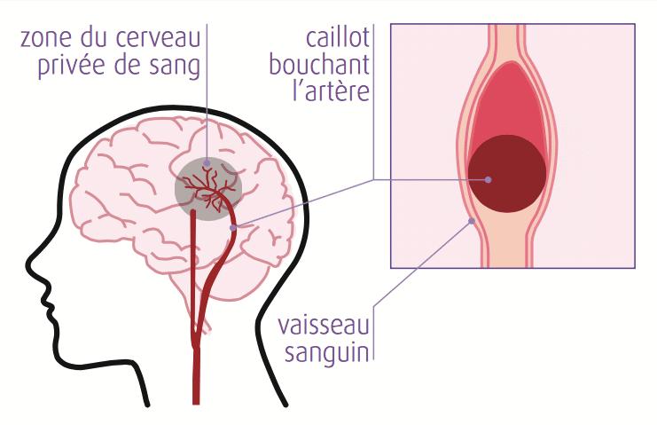 AVC Ischémique ou infarctus cérébral