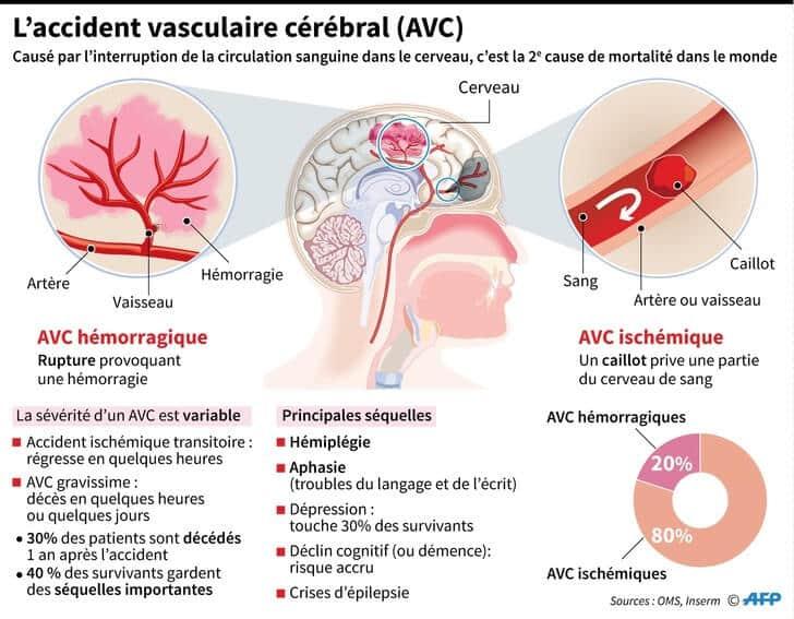Les différentes formes de l'AVC