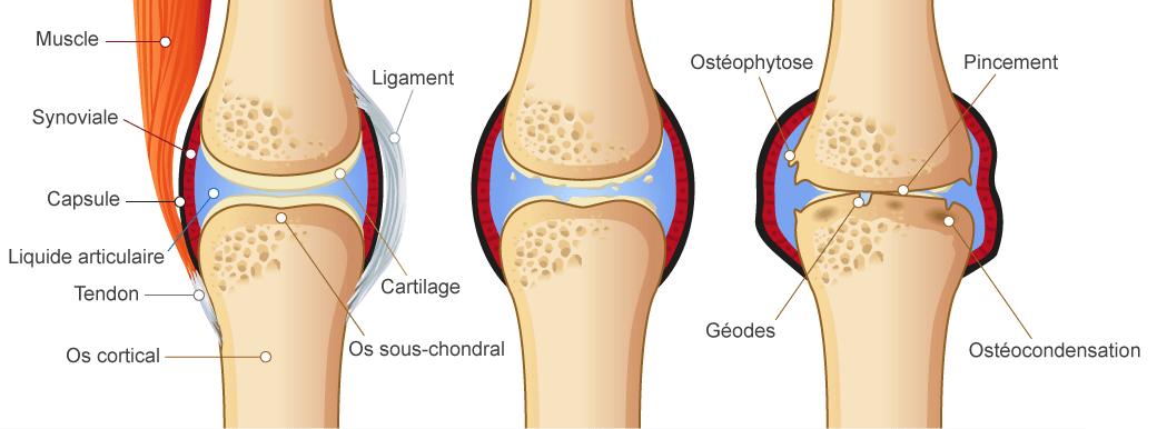 évolution de l'arthrose