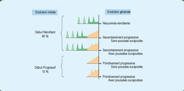 evolution sclerose plaques - source Ameli