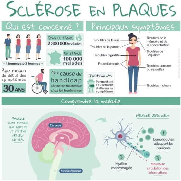 infographie sclerose en plaque