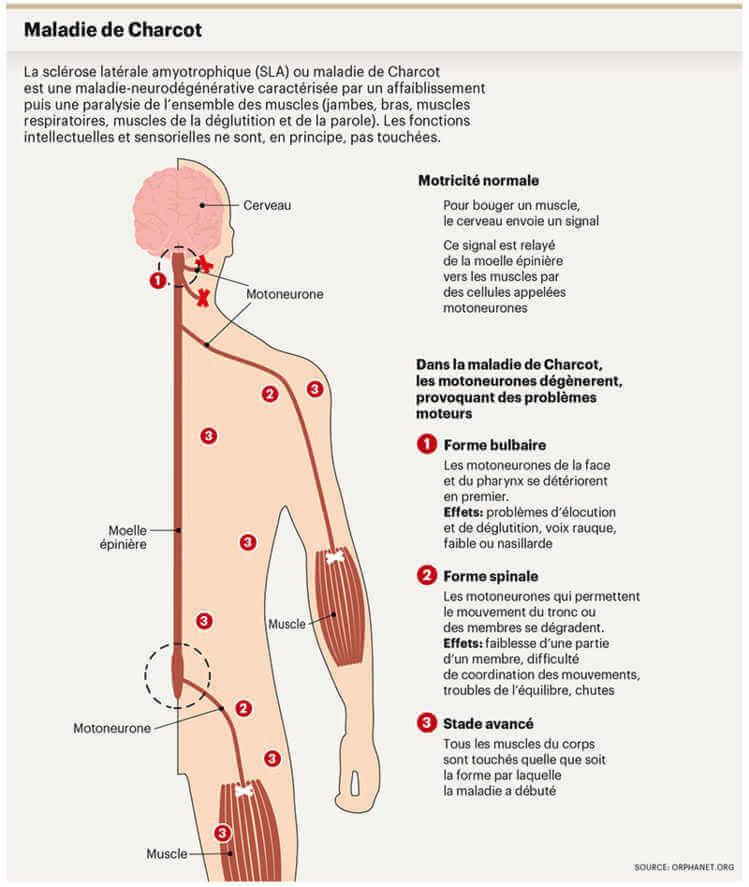 Symptômes maladie de Charcot