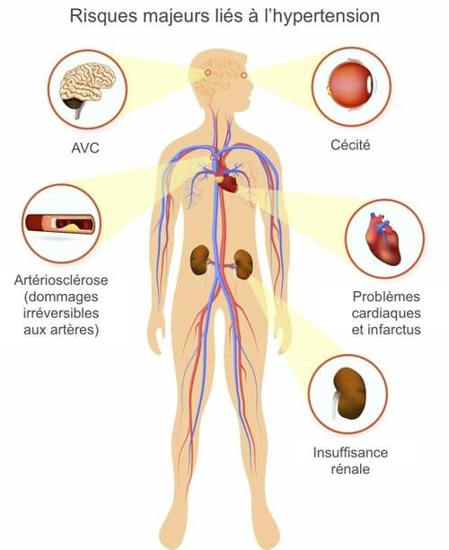 Risques majeurs liés à l'hypertension