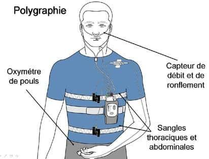 polygraphie ventilatoire nocturne large - Illustration nastent.fr
