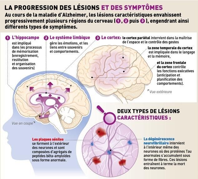 Causes de la maladie d'Alzheimer