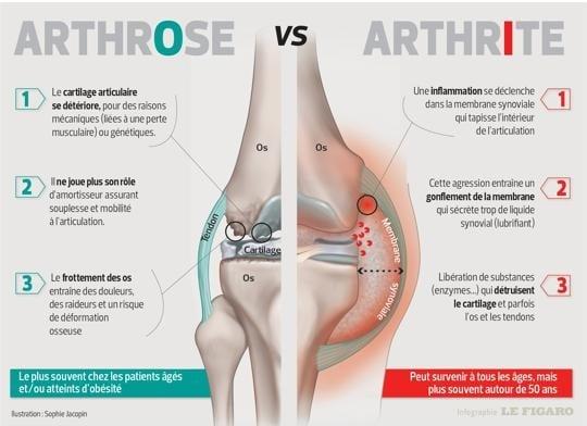 Différences arthrose et arthrite