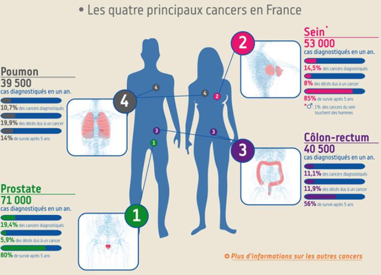 4 principaux cancers en France