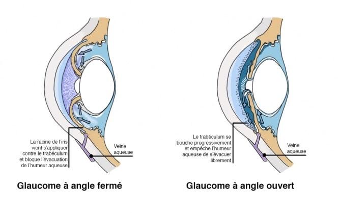 glaucome angle ouvert et angle fermé
