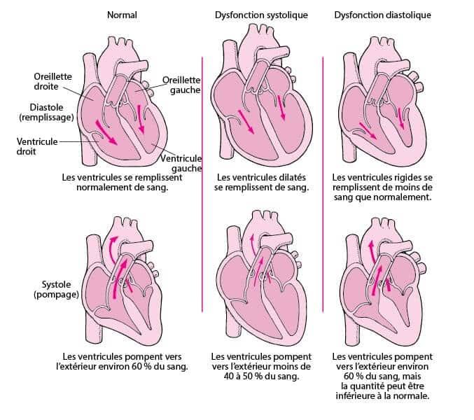 insuffisance cardiaque fonctionnement